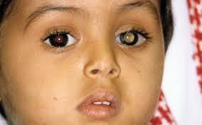 A Case of Retinal Dysplasia, Misdiagnosed as Retinoblastoma