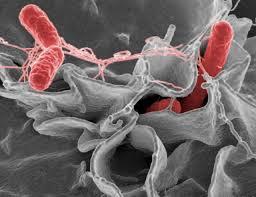 Computational Systems Biology of Pathogen–Host Interactions