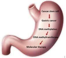 Gastric Malignancy, is a Disease that Creates from the Coating of the Stomach