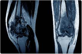 Osteosarcoma is a sort of bone malignancy that starts in the cells that structure bones