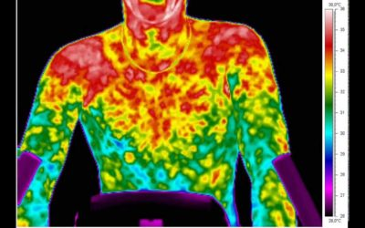 Development of Medical Infrared Imaging Protocol for the Emergency Department