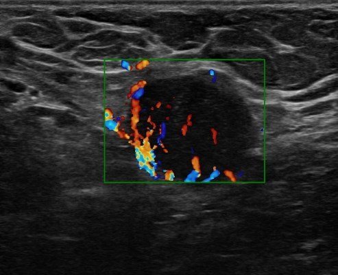 Ultrasound-Guided Axillary Lymph Node Biopsy: Retrospective Analysis