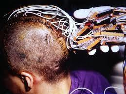 Clinical Epilepsy