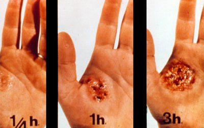 Corrosive Ingestion Injuries-A Case Report