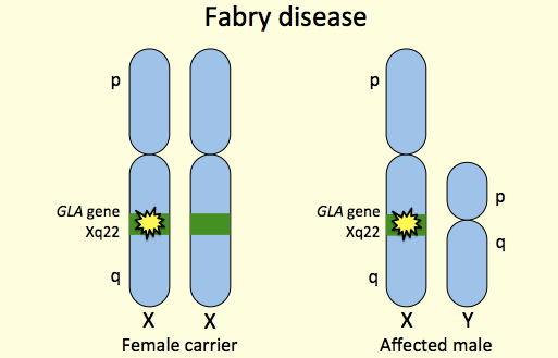 Treatment with Agalsidase Alfa during Pregnancy in a Heterozygous Female with Fabry Disease