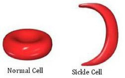Indigenous Complimentary Health Seeking Behavior among Caregivers of Sickle Cell Disorder in Nigeria