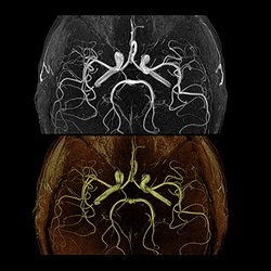 Cerebrovascular and Brain Abnormalities in Autosomal- Dominant Polycystic Kidney Disease: Role of 3d Time-of-Flight Magnetic Resonance Angiography