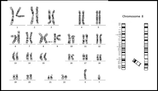 A Rare Familial Paracentric Inversion in the Long Arm of Chromosome 8: Case Report and Review of the Literature