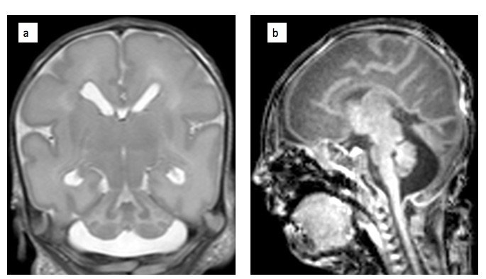Cerebellar Hypoplasıa as a Manıfestatıon of 6q25 Deletıon in a Preterm Newborn
