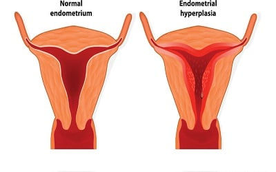 Evaluation of Women with Post-Menopausal Bleeding