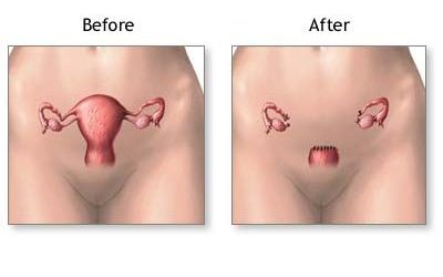 Uterine Sarcoma Presenting in the Setting of Non-puerperal Uterine Inversion with Uterine Prolapse
