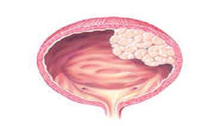 Screening Workers Exposed to 4,4'-Methylenebis(2- Chloroaniline) (MBOCA) for Bladder Cancer in Taiwan