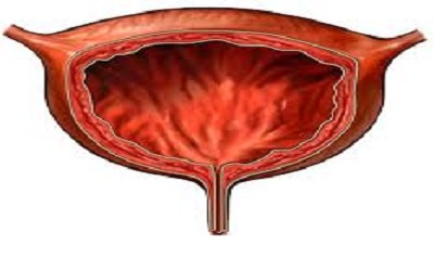 Interstitial Cystitis/Bladder Pain Syndrome: The Current Understanding