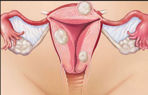 Clinical, Investigative, Postoperative Status in Cervical Precancer and Cancer