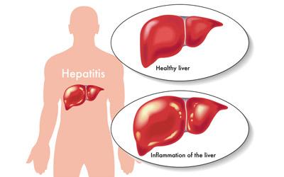 Clinico-Demographic Profile and Status of Hepatitis B Immunization among Chronic Kidney Disease Patients Seeking Tertiary Hospital Care
