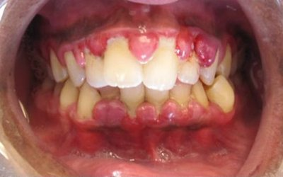 Markers of Inflammation among Nigerian Periodontitis Patients