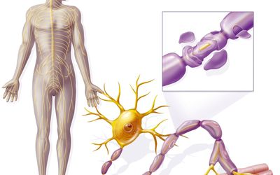 Prospect of CD52 Targeted Alemtuzumab in Treatment of CNS Demyelination in Multiple Sclerosis
