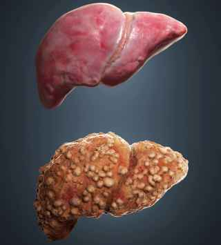 What is The Liver pathophysiology ?