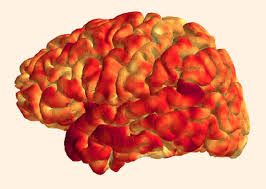 Brain stroke in early 50's