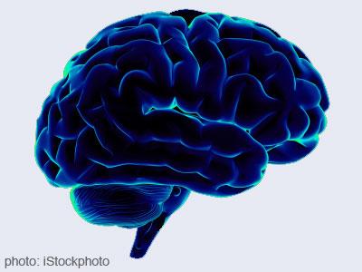 Affects Alzheimer's disease in brain functioning