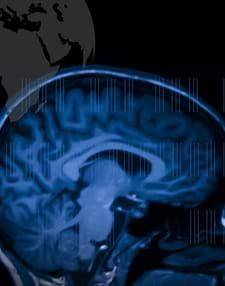 Stroke: Mechanisms in Search of Treatments