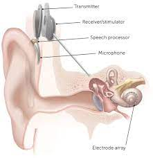 Customary Treatment for Hearing Misfortune