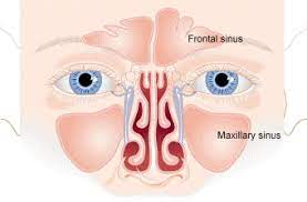 Sinusitis Disease in People and its Circumstances