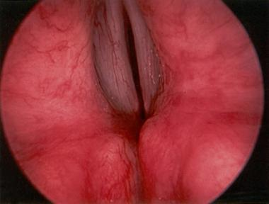 Reversibility of a Vocal Cord Palsy Following Fine Needle Aspiration Cytology of a Clinically Impalpable Thyroid Nodule