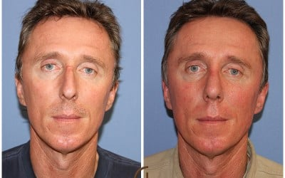 Identical Twins Rhinoplasty: Challenges & Psychological Aspects