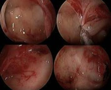 Debride and Conquer: A New Angle in Endoscopic Removal of Antrochoanal Polyps