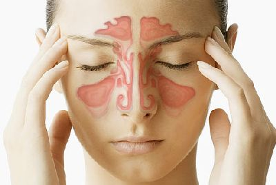 Quantitative Evidence Against Bacterial Infection Alone as a Cause of Chronic Rhinosinusitis