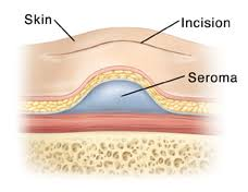 Tetracycline Sclerotherapy for Seroma: A Systematic Review