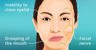 Case Report: Bell's Palsy and Stem Cell Therapy