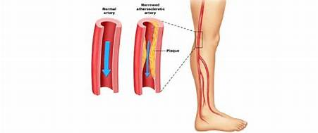 Microvascular effect after the application of cell therapy with a concentrate of hematopoietic stem cells in patients with peripheral arterial disease with non-critical limb ischemia and diabetes