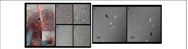 Human Mesenchymal Stem Cells seeded in 3D Collagen Matrix Scaffolds as a Therapeutic Alternative in Tissue Regeneration