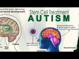 The Promise of Regenerative Medicine and Stem Cell Research for the Treatment of Autism