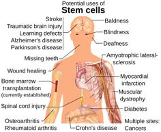 Suspended Life - Stem Cells: Are Treatments Possible?