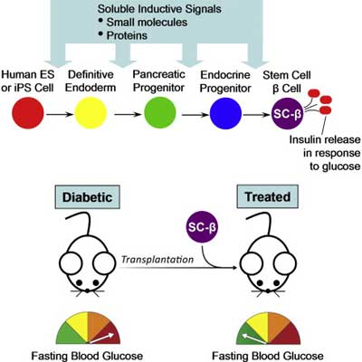 Human Peripheral Blood Stem Cells and The Glycemic Index Diet can be a Solution to Diabetes Mellitus Type 2