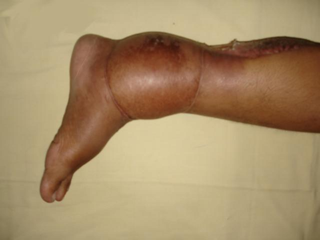 Surgery of Soft Tissue Limb Sarcomas in An African Cancer Center