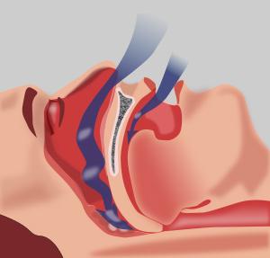 Monosodium Urate as a Biomarker for Obstructive Sleep Apnea