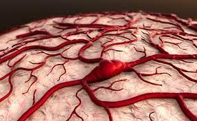 Diagnostic Conundrums in Cerebellar Cryptic Arteriovenous Malformations