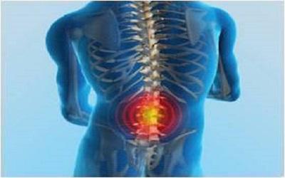 A Case Of Spontaneous Spinal Epidural Hematoma After Leg Press Machine