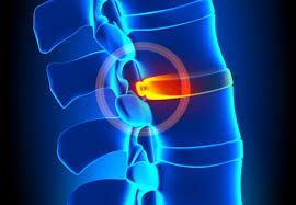 Clinical Research  in Spine and Neurosurgery