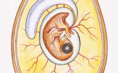 Should we Re-Define Age of Fetal Viability in Nigeria? A Case Report of Newborn Survival from Pre-Viable Pre-Labor Rupture of Membranes