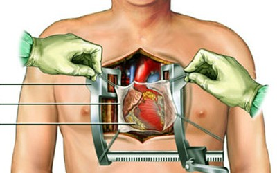Natriuretic Peptide Levels and Early Respiratory Adverse Outcome in Cardiac Surgery: A Short Review of the Literature