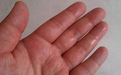 Sympathetic Ablation for Primary