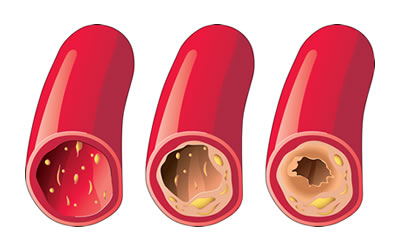Diagnosis and Treatment of