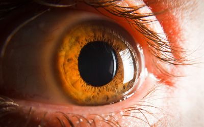 An Interesting Case of Granular Corneal Dystrophy Type 1