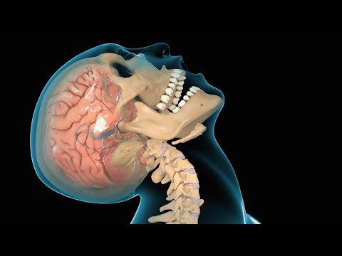 Diffuse Brain Injury-Review of Literature and Representative Case Reports