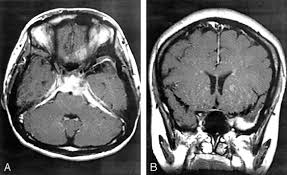 A Case of JRA with Tuberculosis Hypertrophic Cranial Pachymeningitis